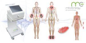 me2.vie Systemtherapie bei Polyneuropathie - MitoMedical Care Koblenz